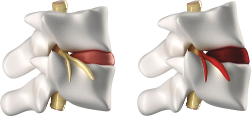 Subluxaciones de la columna vertebral