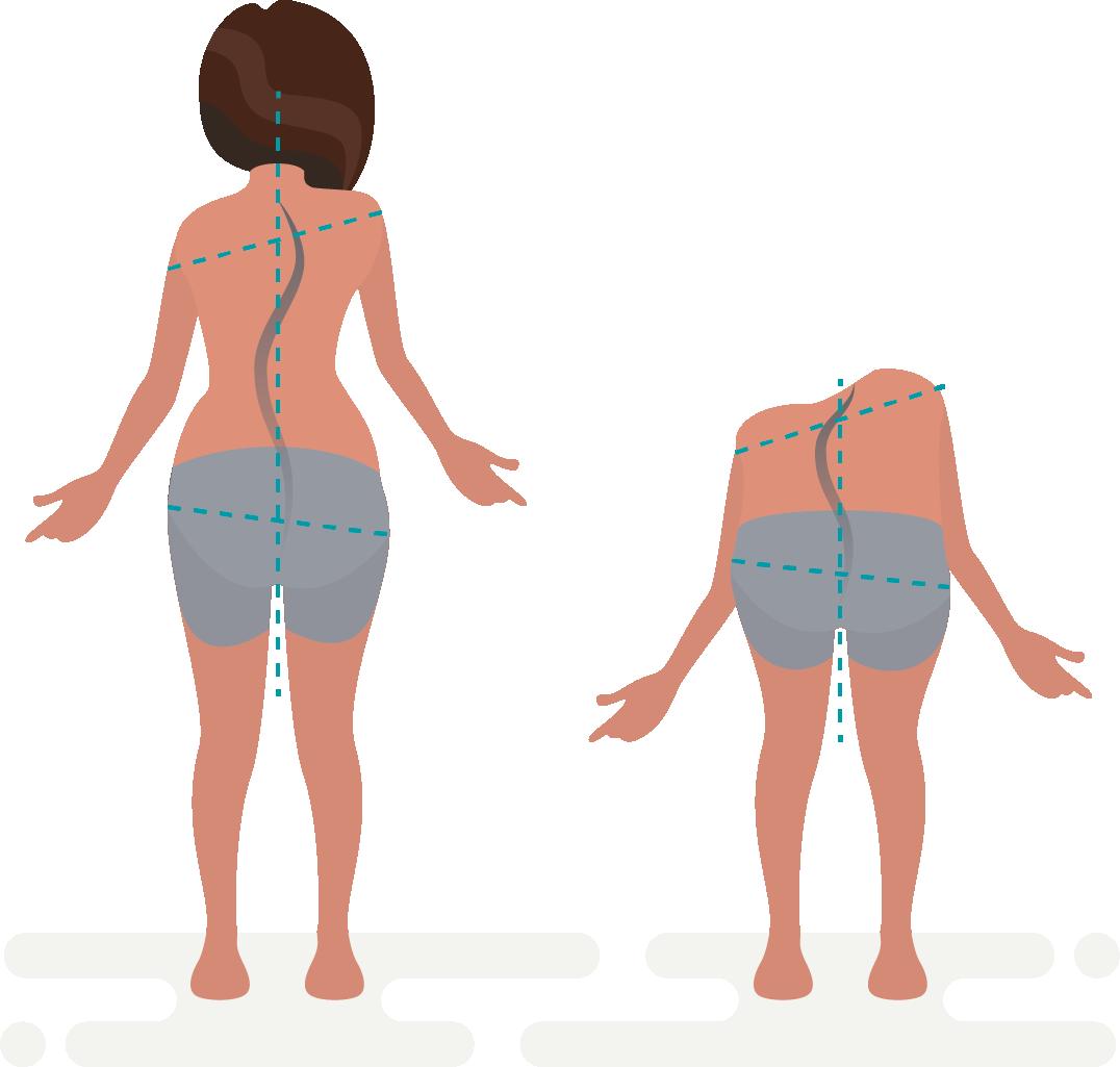 Cómo la quiropráctica alivia el dolor producido por la escoliosis