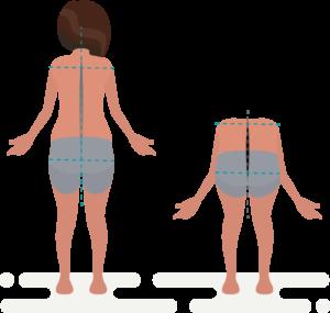 La quiropráctica ayuda a mantener la espalda recta y corregir malas posturas provocadas por la escoliosis